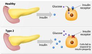 Определение и принятая классификация сахарного диабета