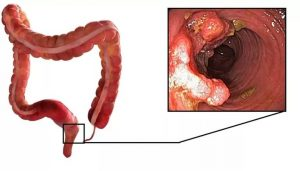 Симптомы и лечение аденокарциномы прямой кишки