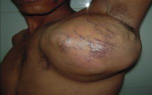 Причины и лечение саркомы Юинга
