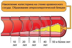 Отложения холестерина на стенках сосуда