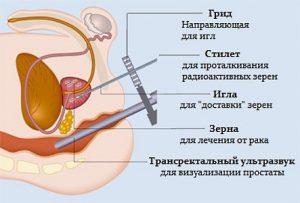 Рак простаты с метастазами