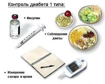 Этиология и патогенез сахарного диабета 1 типа