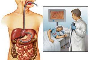 Симптомы и лечение саркомы желудка