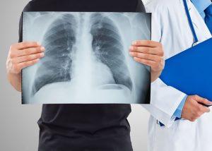 Сколько живут при раке легких 1 и 2 стадии?