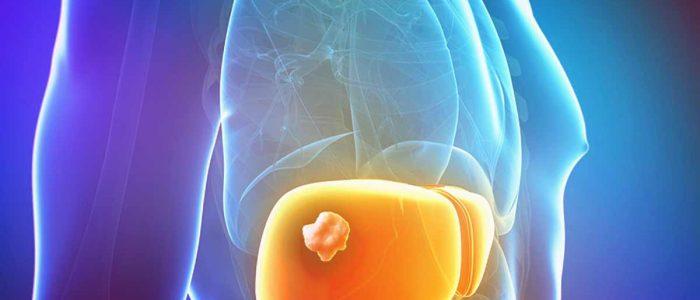 Симптомы и лечение гепатоцеллюлярной карциномы