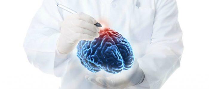 Глиома мозга