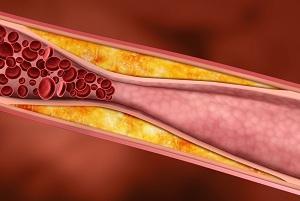 Отложение холестериновых бляшек