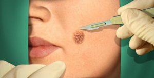 Симптомы и лечение меланомы кожи