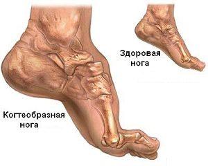 Деформация ноги