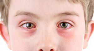 Причины и лечение бинокулярной ретинобластомы