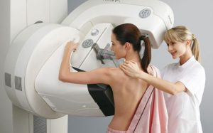 Люминальный тип рака молочной железы