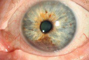 Меланома на глазу