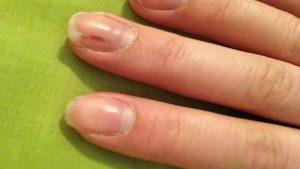 Меланома под ногтем
