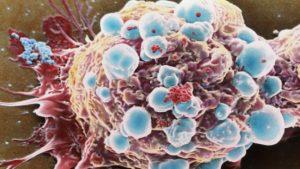 Причины и лечение эмбриональной рабдомиосаркомы