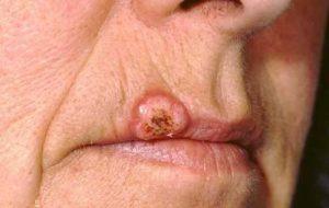 Причины и лечение плоскоклеточной карциномы