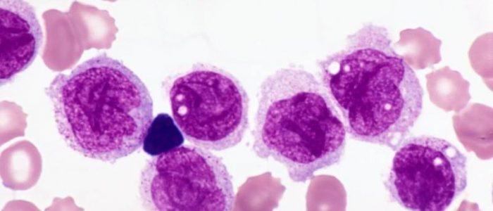 Острый миелоидный лейкоз