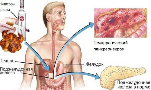 Возможные причины заболевания