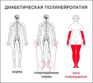 Зоны повреждений нервов