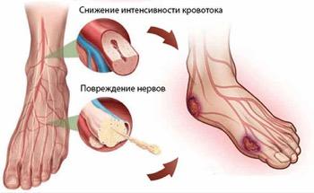 Снижение кровотока