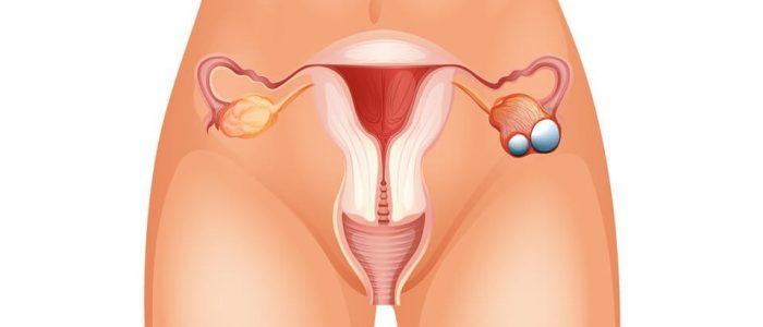 Рак яичников 3 степени