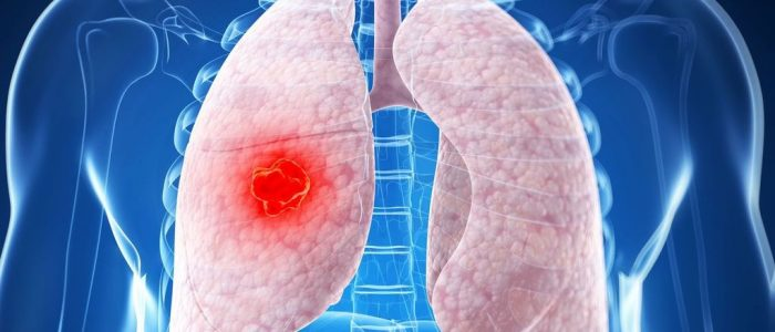 Периферический рак легких