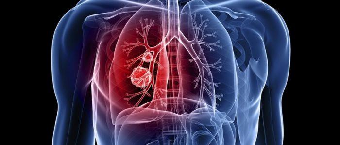 4 стадия рака легких