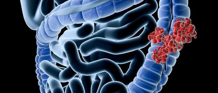 Онкология ободочной кишки