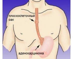 Симптомы и лечение рака пищевода