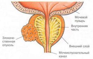 Удаление предстательной железы при раке