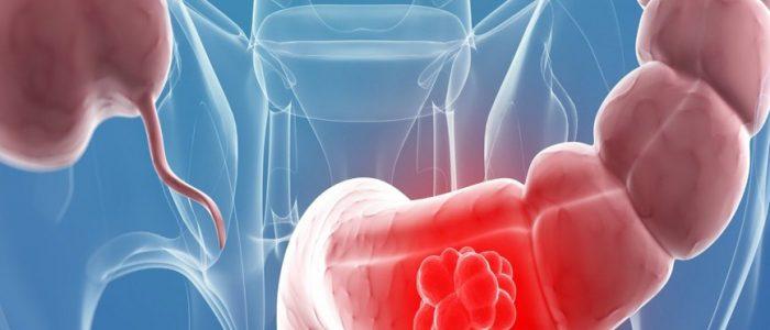 Лучевая терапия рака прямой кишки
