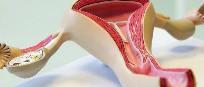 Рак яичников на УЗИ