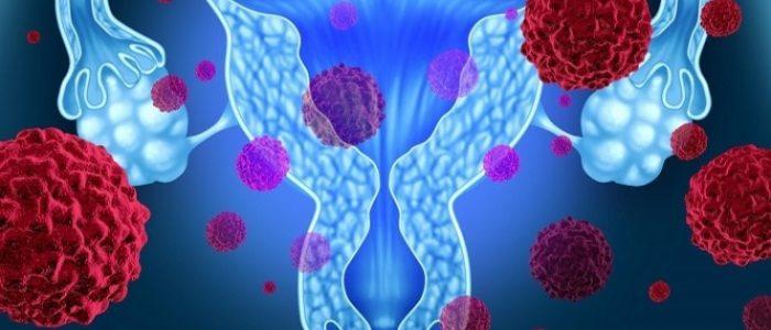 Химия при раке яичников
