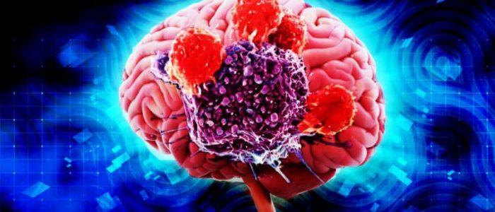 Саркома мозга