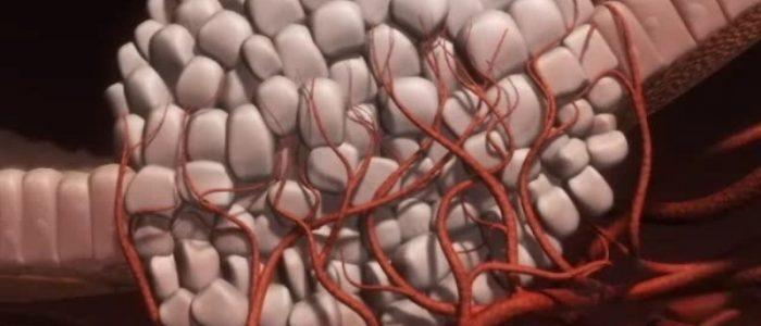 Симптомы и лечение саркомы мягких тканей