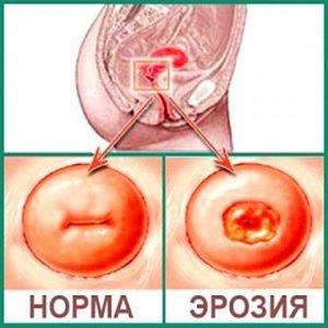 Причины и лечение карциномы матки