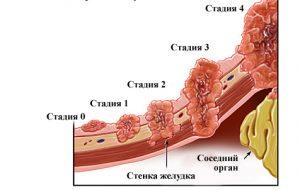 Рак 4 стадии