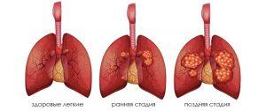 Рак легких 3 стадии