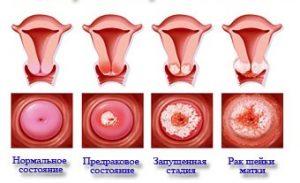 Симптомы и лечение рака матки