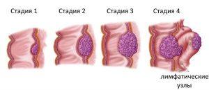 Аденокарцинома толстого кишечника