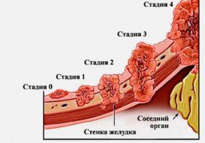 Перстневидный рак желудка