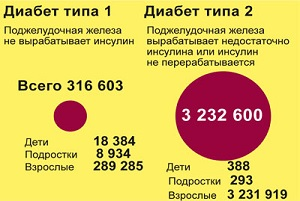 Диабеты 1 и 2 типа - статистика