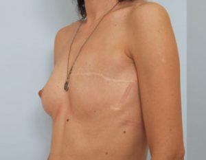 Аденокарцинома грудной железы