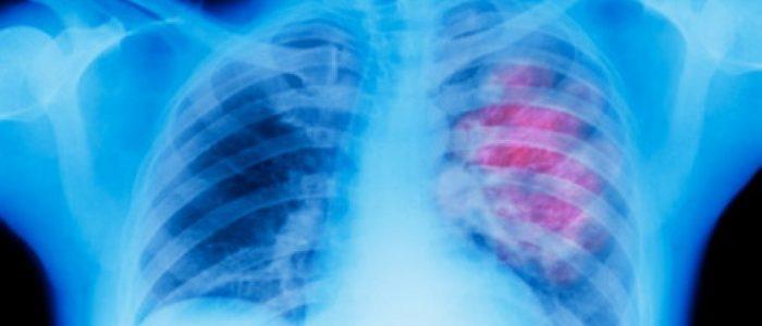 Вода в легких при онкологии